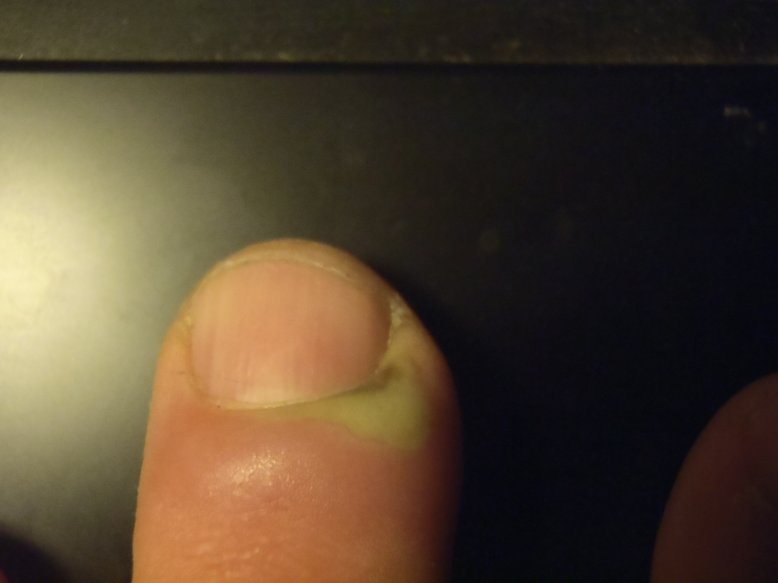 Eiter Finger